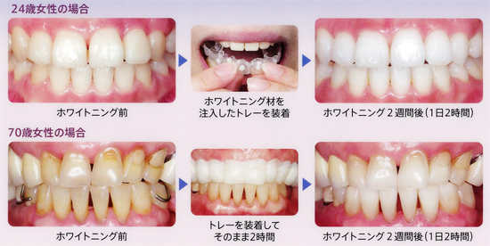 を する 方法 白く 歯